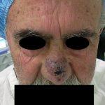 Photo0077 Copy 150x150 - نمونه جراحی